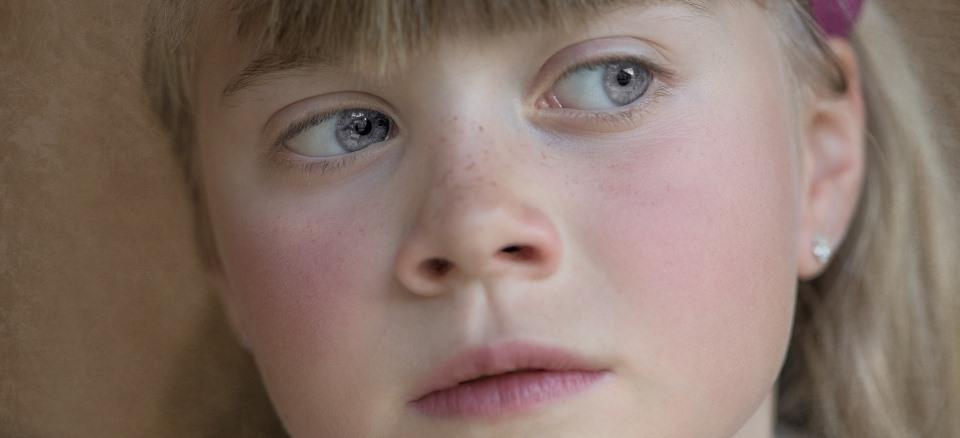 Choroby, którymi możesz zarazić się od dziecka: parwowirus B19